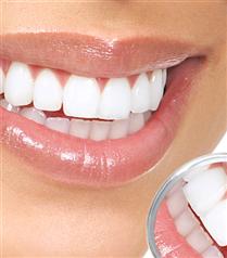 Dişlere Zarar Veren 7 Alışkanlık