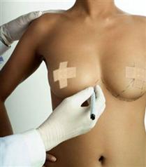 Meme protezi ameliyatları artış eğiliminde