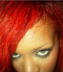 Rihanna alnını yaktı