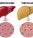 Karaciğer Yağlanması Nedir? Karaciğer Yağlanmasına Ne İyi Gelir?