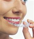 Diş Tellerine Son